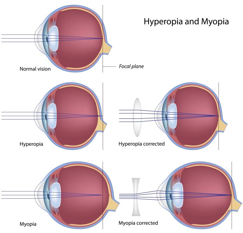 myopiahyperopia.jpg